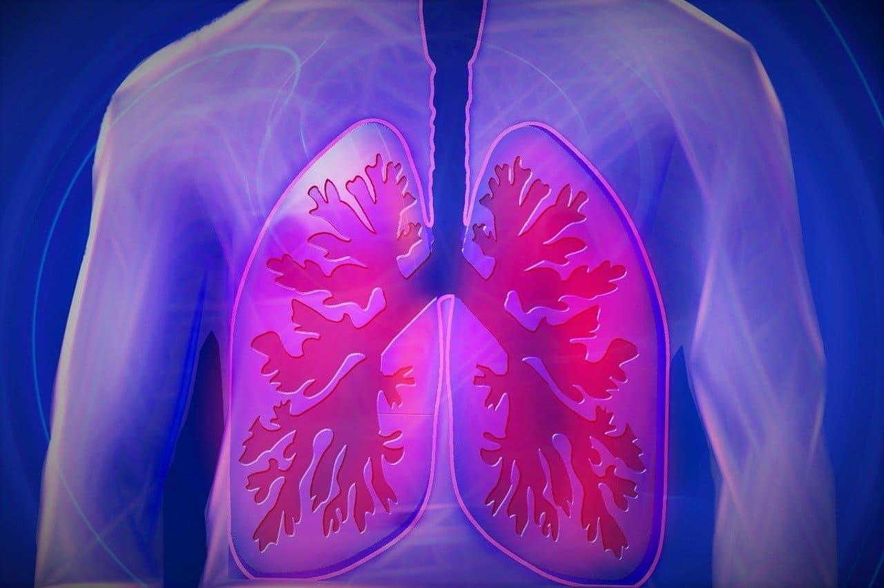 pulmones tomografia